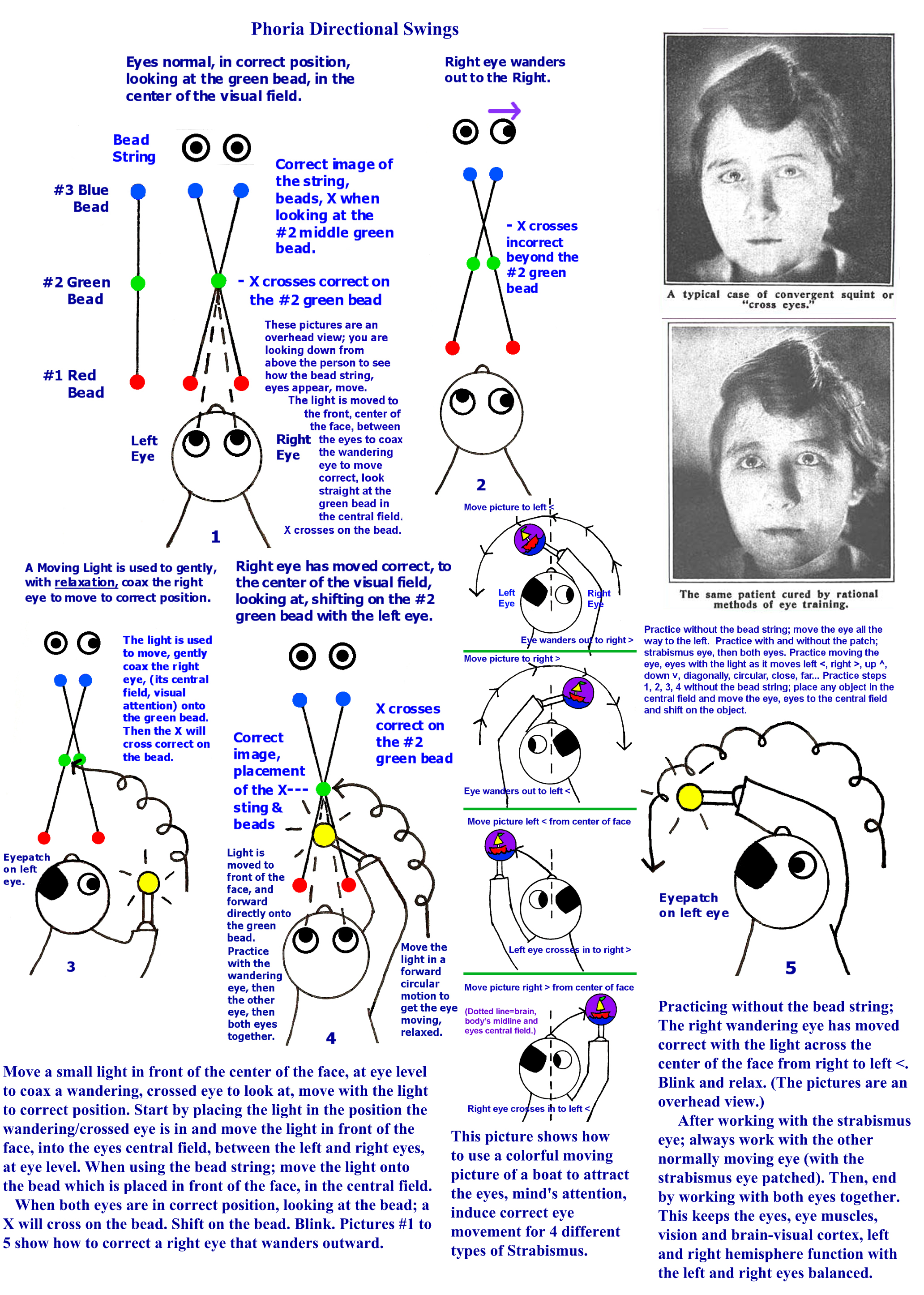 Phoria Swing For Correct Eye Movement