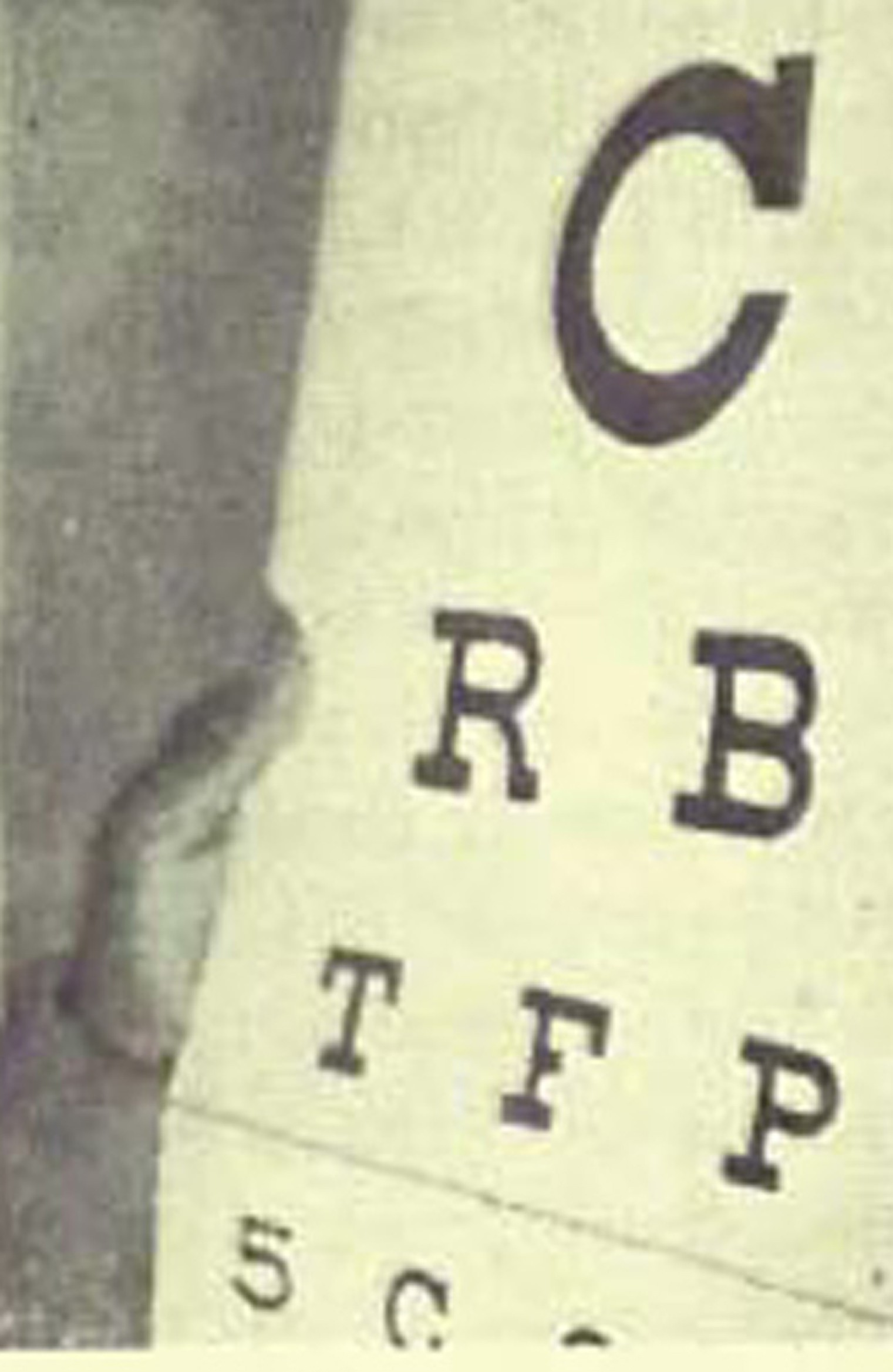 Patient in Dr. Bates Clinic uses Palming and Eyechart to Cure Extreamly Low Vision